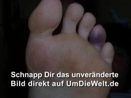 Fußzeh Gebrochen